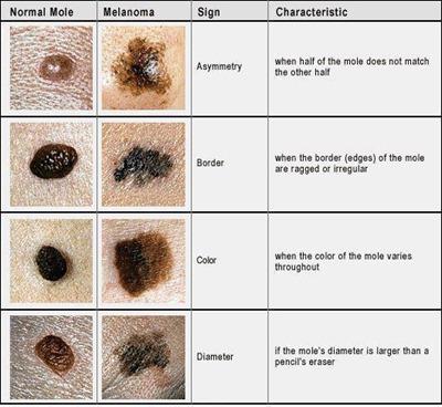 mole_cancer
